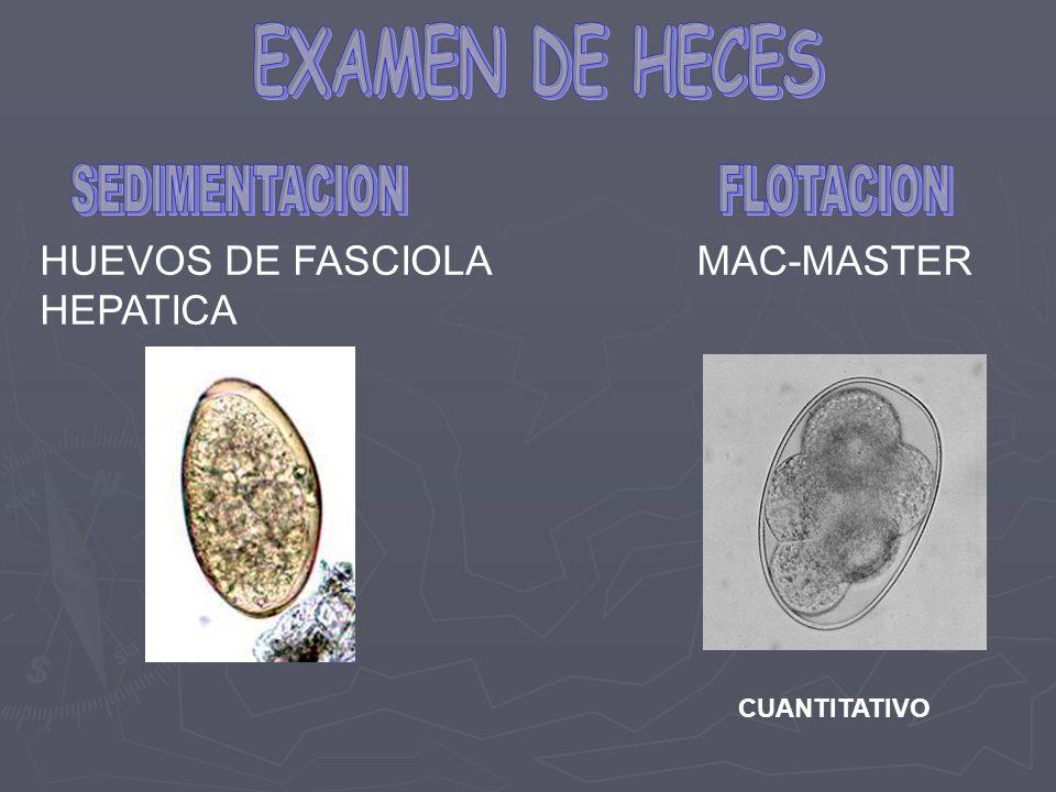 EXAMEN DE HECES HUEVOS DE FASCIOLA HEPATICA MAC-MASTER SEDIMENTACION