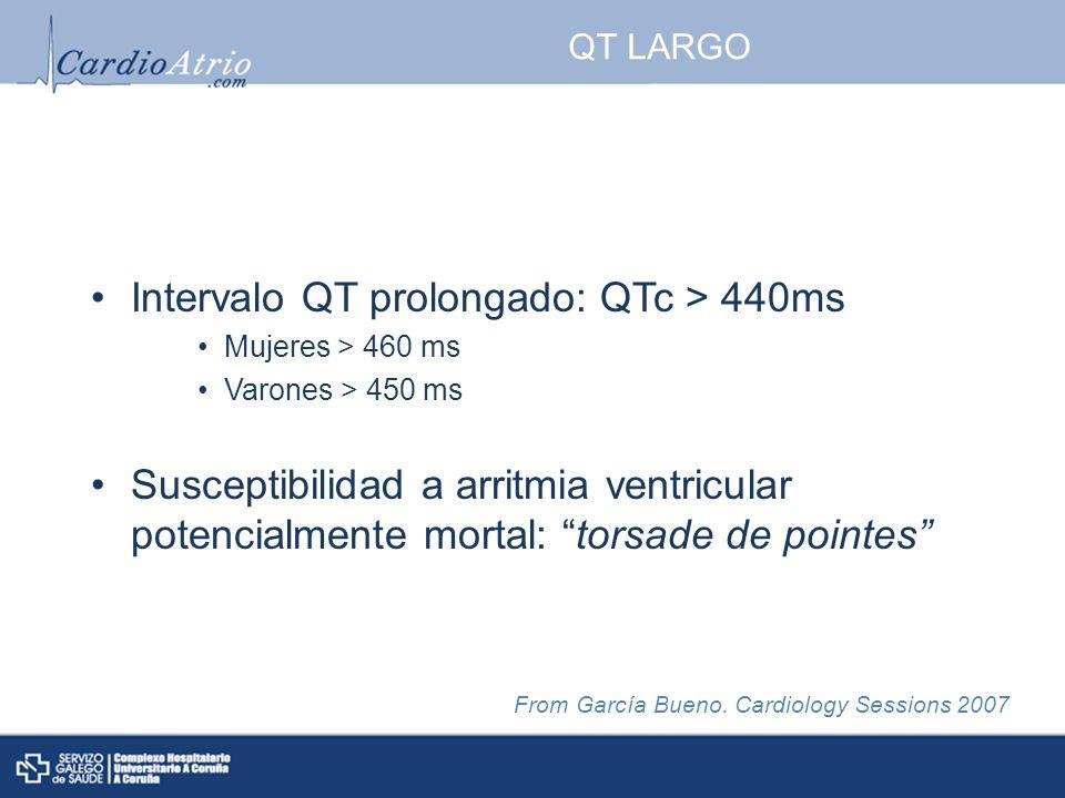 Intervalo QT prolongado: QTc > 440ms
