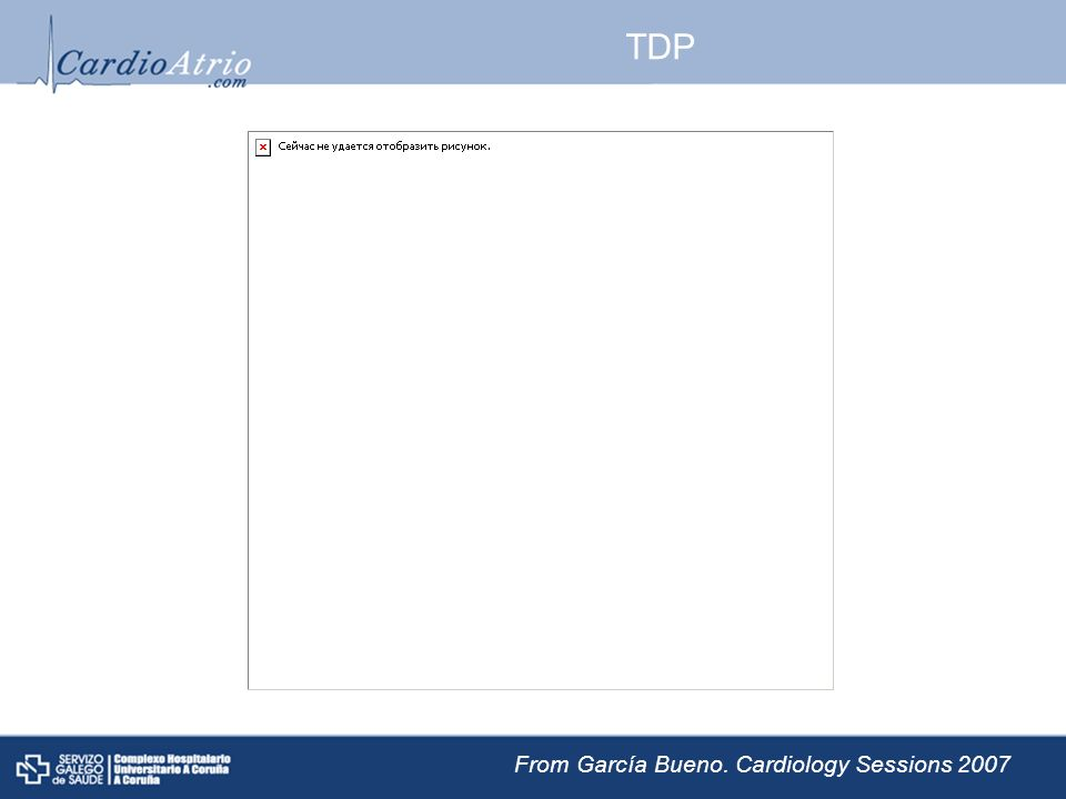 TDP From García Bueno. Cardiology Sessions 2007