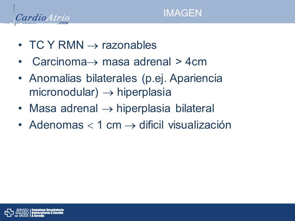Carcinoma masa adrenal > 4cm