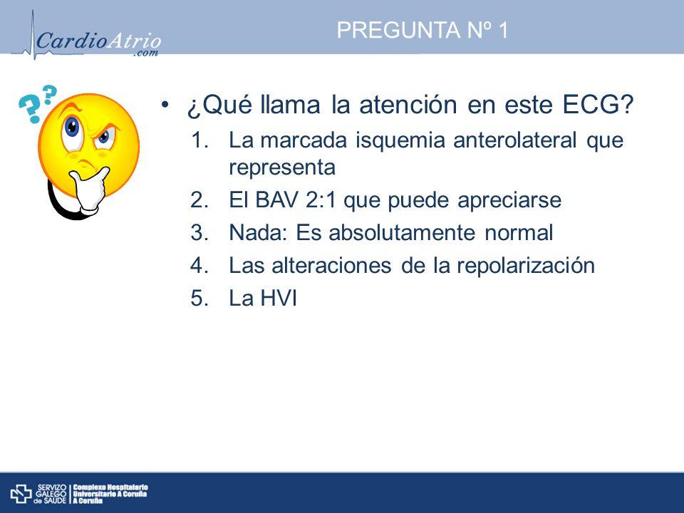 ¿Qué llama la atención en este ECG