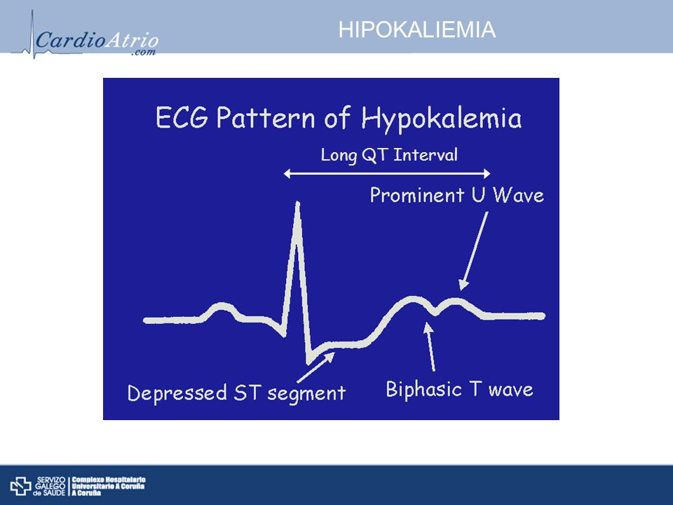 HIPOKALIEMIA Long QT Interval