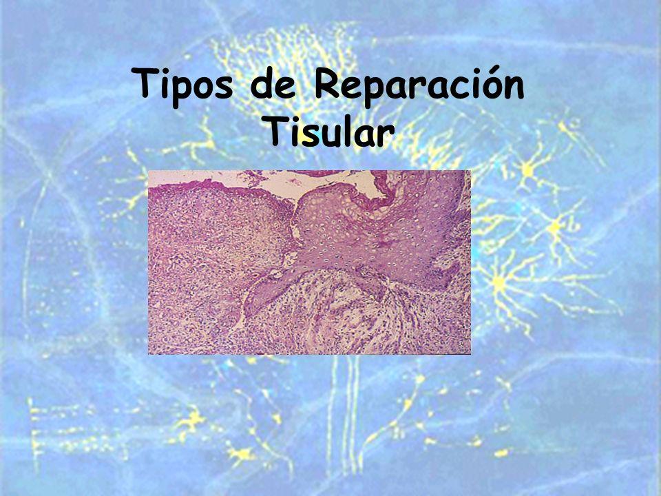 Tipos de Reparación Tisular