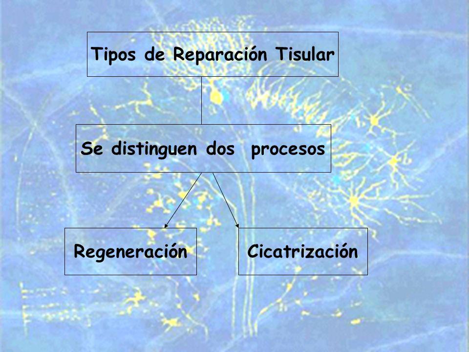 Tipos de Reparación Tisular Se distinguen dos procesos