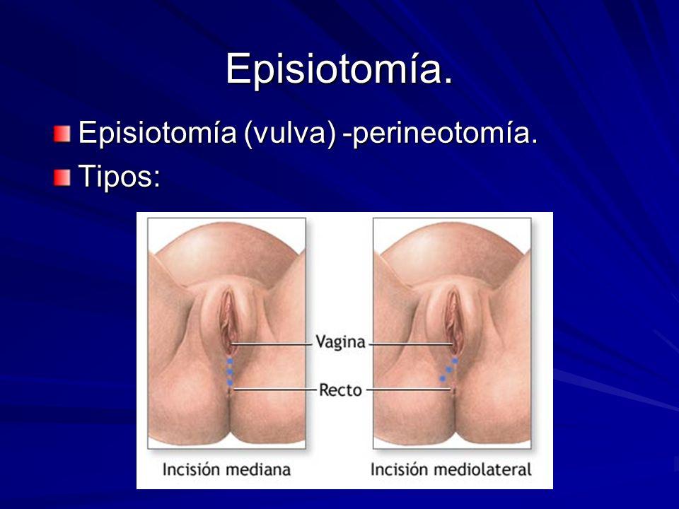 Episiotomía. Episiotomía (vulva) -perineotomía. Tipos: