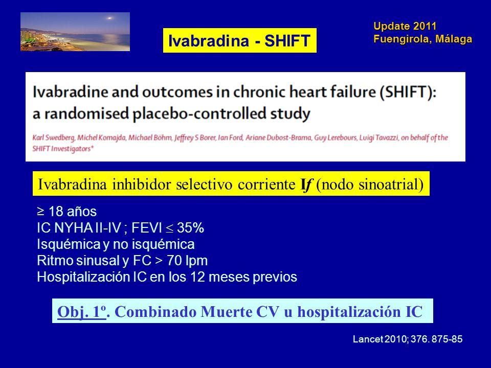 Ivabradina inhibidor selectivo corriente If (nodo sinoatrial)