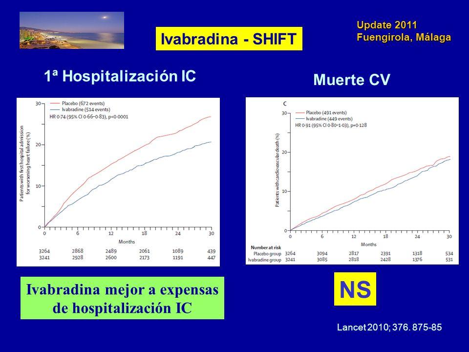 Ivabradina mejor a expensas de hospitalización IC