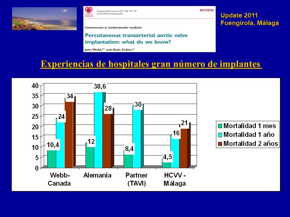 Experiencias de hospitales gran número de implantes