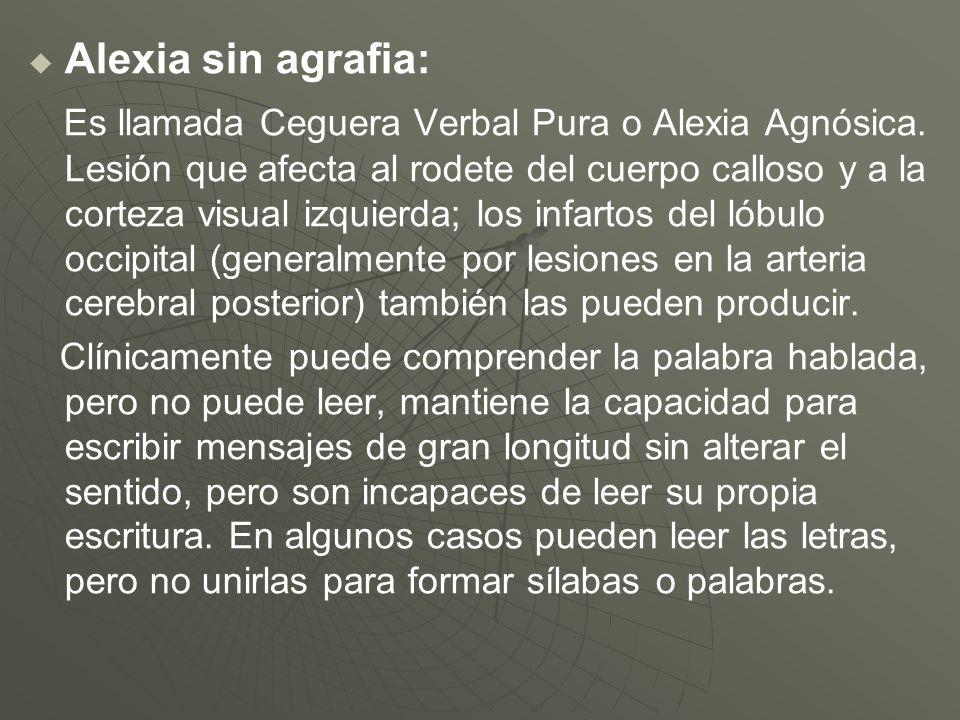 Alexia sin agrafia: