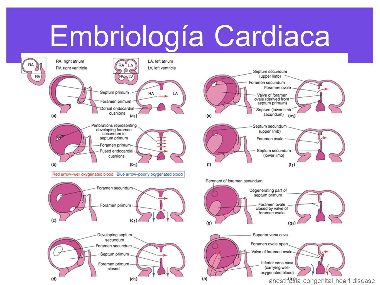 anesthesia congenital heart disease