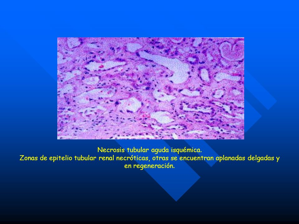 Necrosis tubular aguda isquémica.