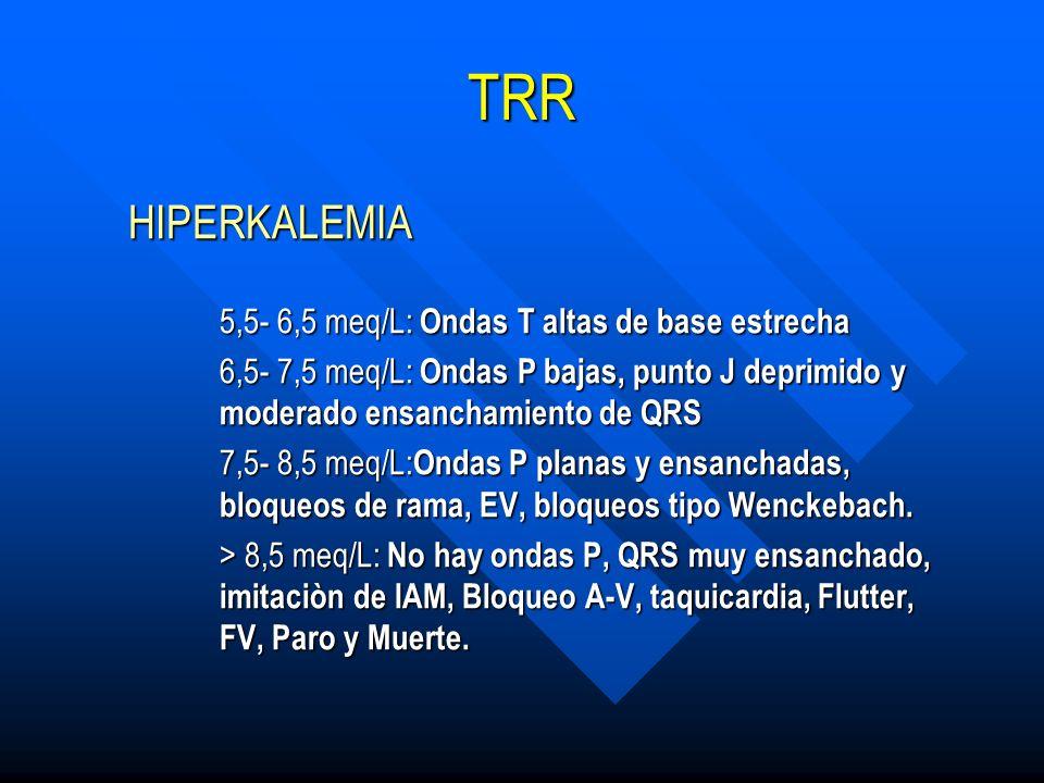 TRR HIPERKALEMIA 5,5- 6,5 meq/L: Ondas T altas de base estrecha
