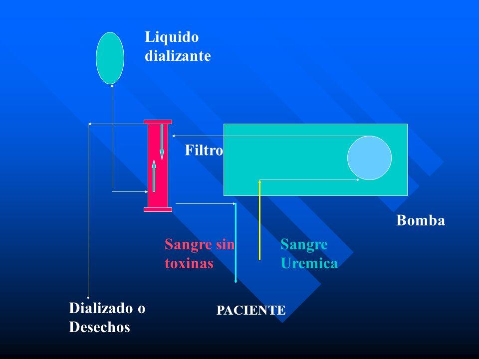 Liquido dializante Filtro Bomba Sangre sin toxinas Sangre Uremica
