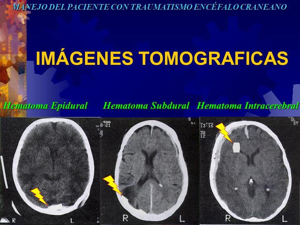IMÁGENES TOMOGRAFICAS