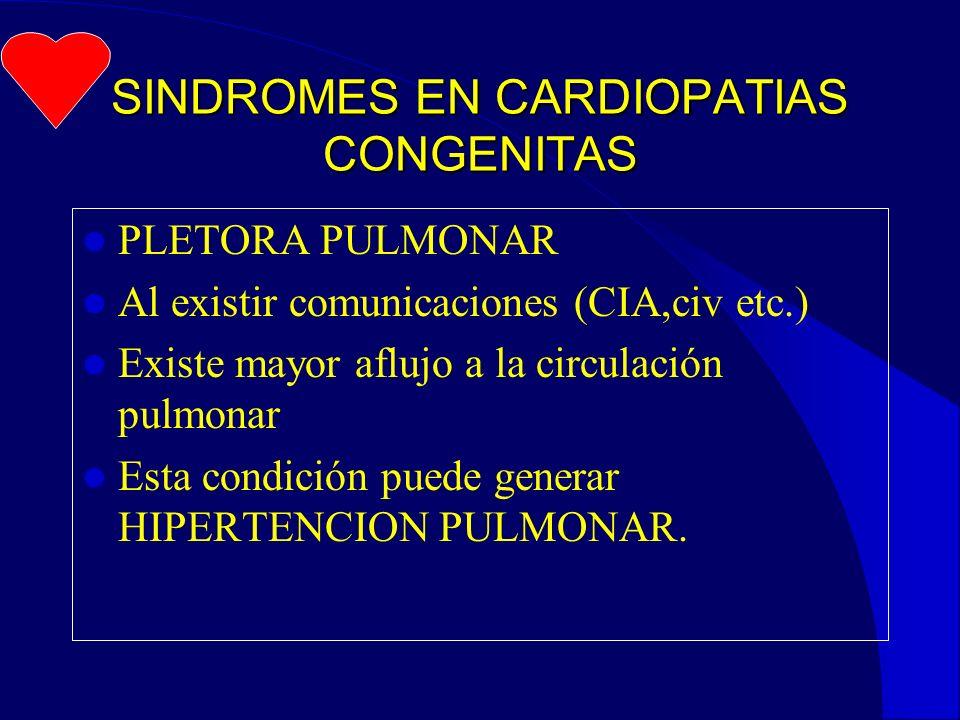 SINDROMES EN CARDIOPATIAS CONGENITAS