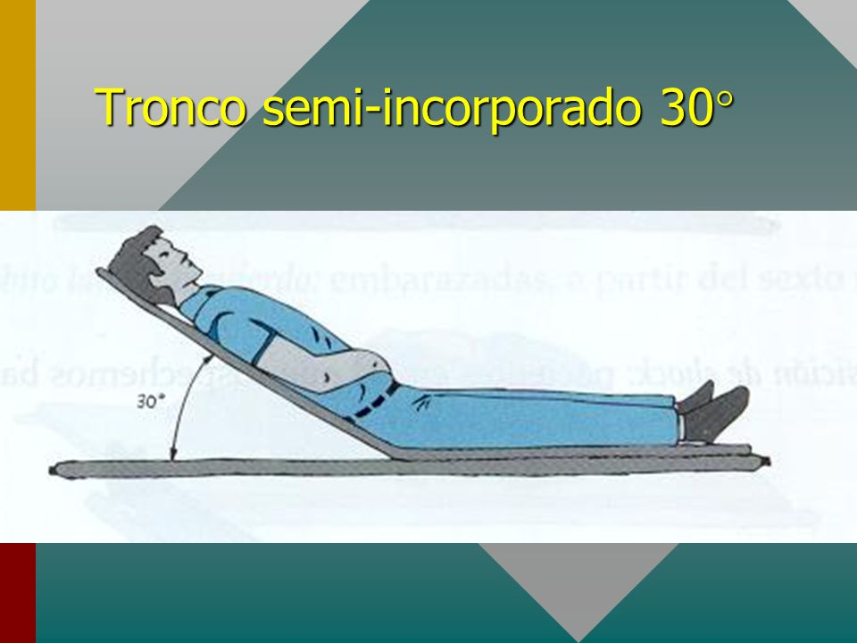 Tronco semi-incorporado 30°
