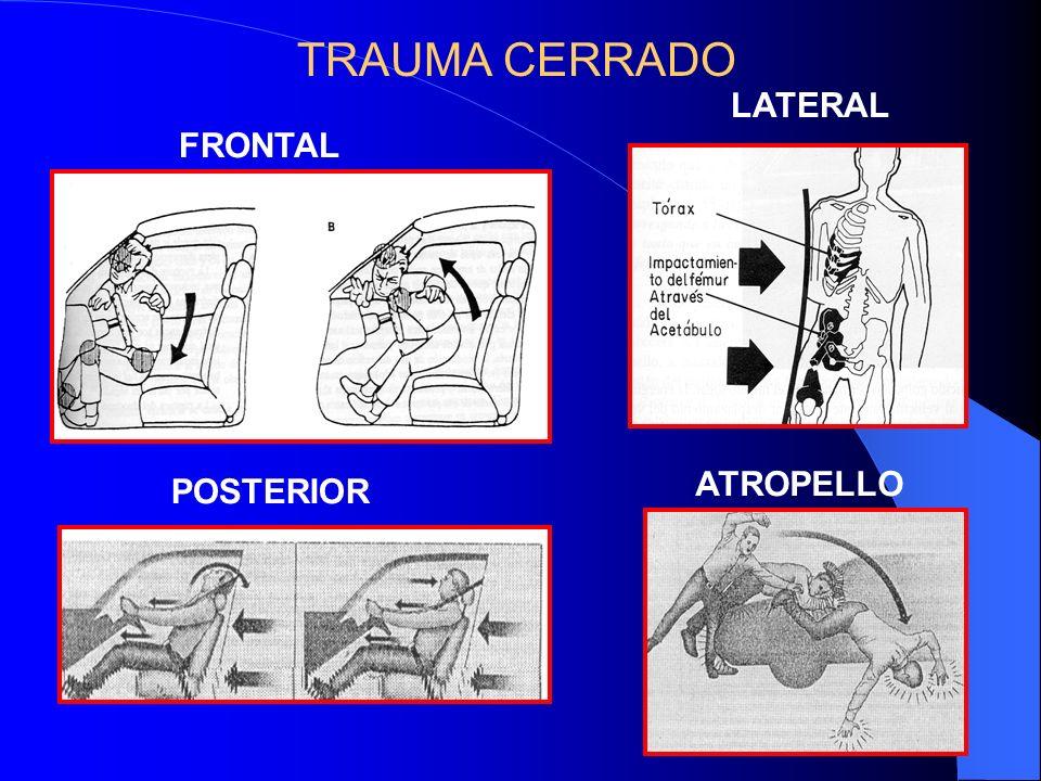 TRAUMA CERRADO LATERAL FRONTAL ATROPELLO POSTERIOR