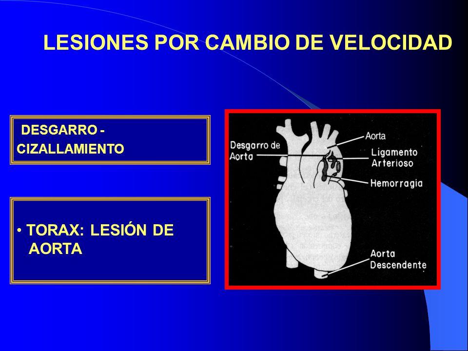 LESIONES POR CAMBIO DE VELOCIDAD