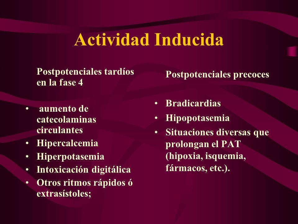 Actividad Inducida Postpotenciales precoces