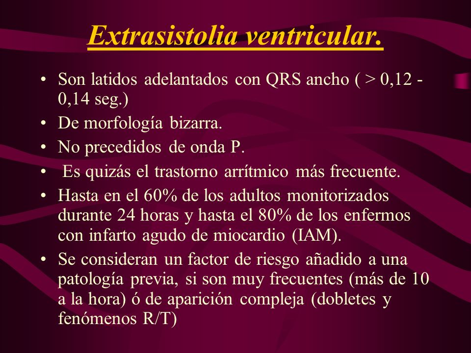 Extrasistolia ventricular.