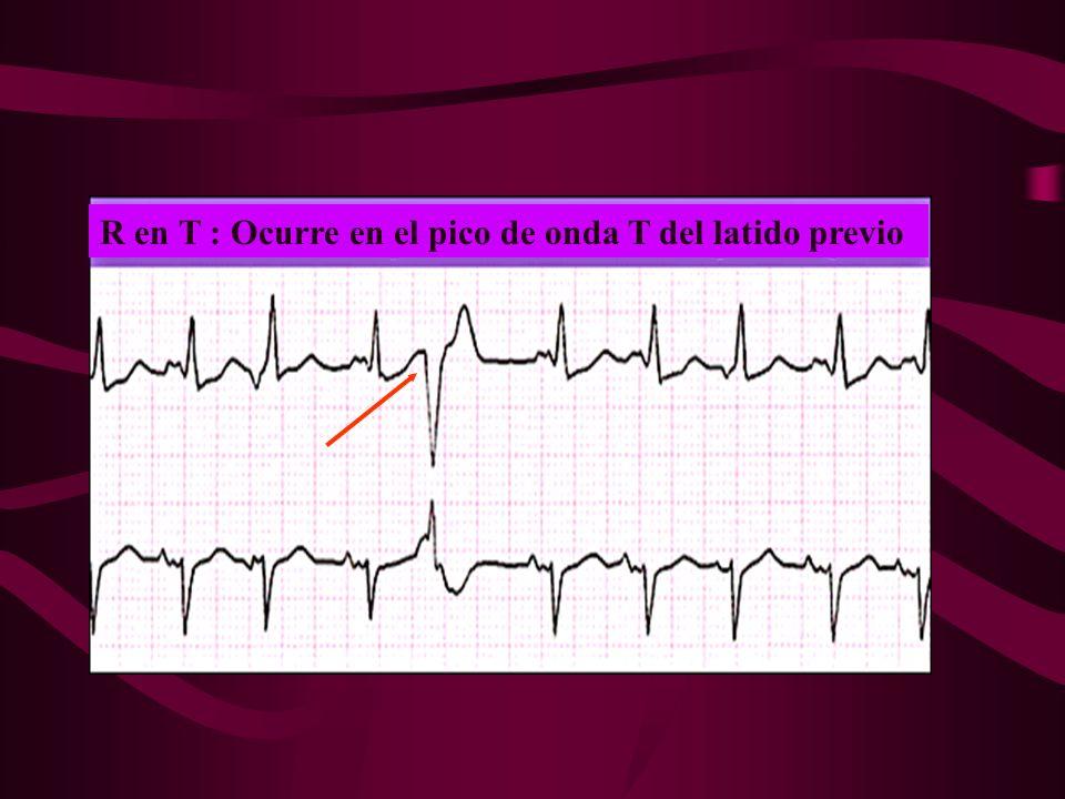 R en T : Ocurre en el pico de onda T del latido previo
