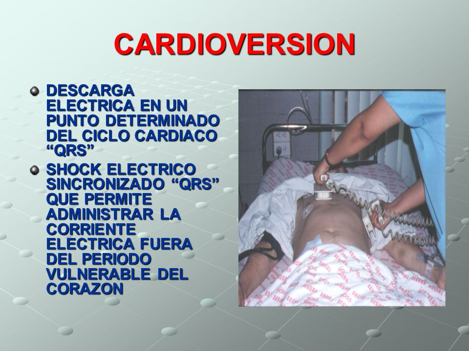 CARDIOVERSION DESCARGA ELECTRICA EN UN PUNTO DETERMINADO DEL CICLO CARDIACO QRS