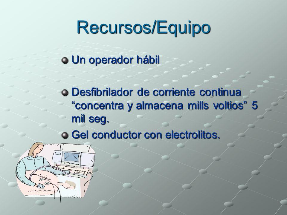 Recursos/Equipo Un operador hábil