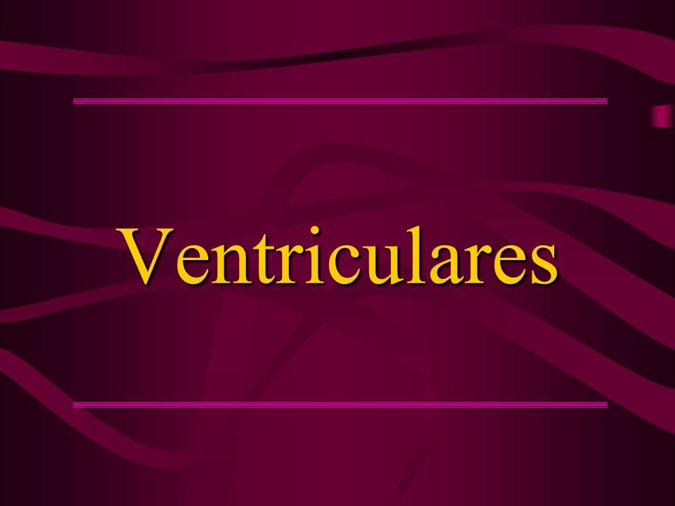 Ventriculares