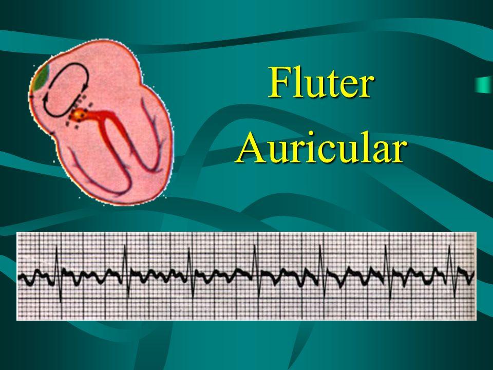 Fluter Auricular