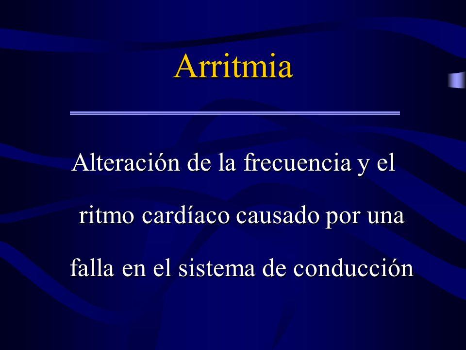 Arritmia Alteración de la frecuencia y el ritmo cardíaco causado por una falla en el sistema de conducción.