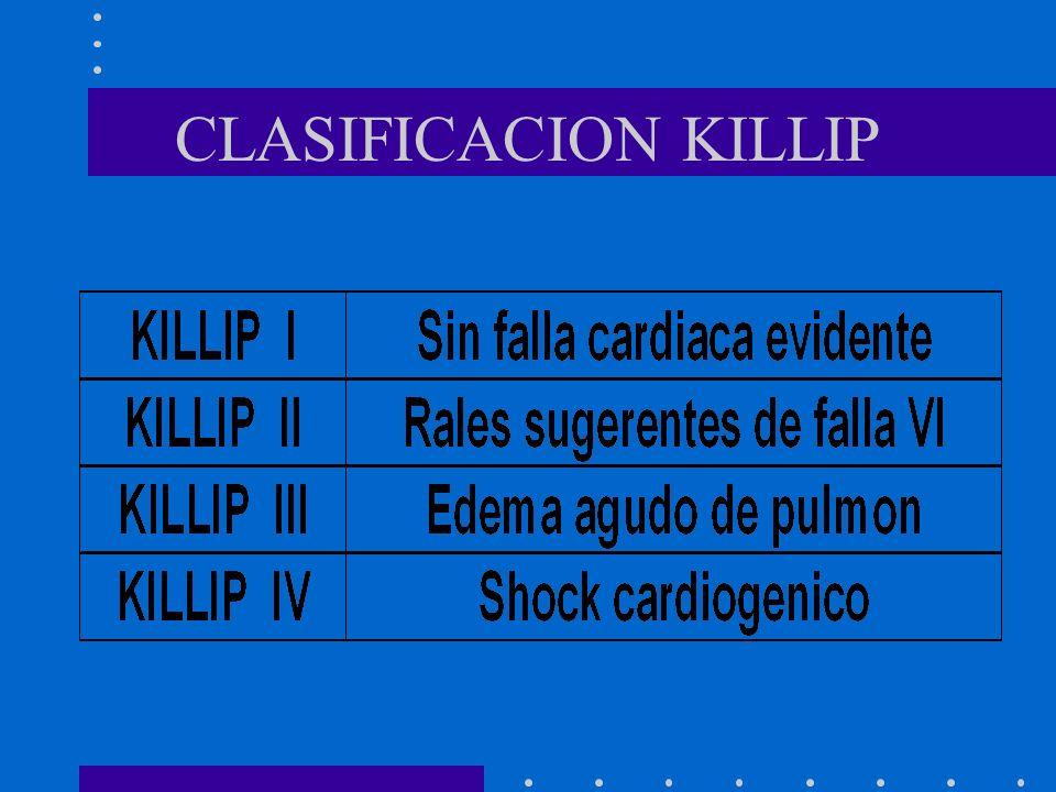 CLASIFICACION KILLIP