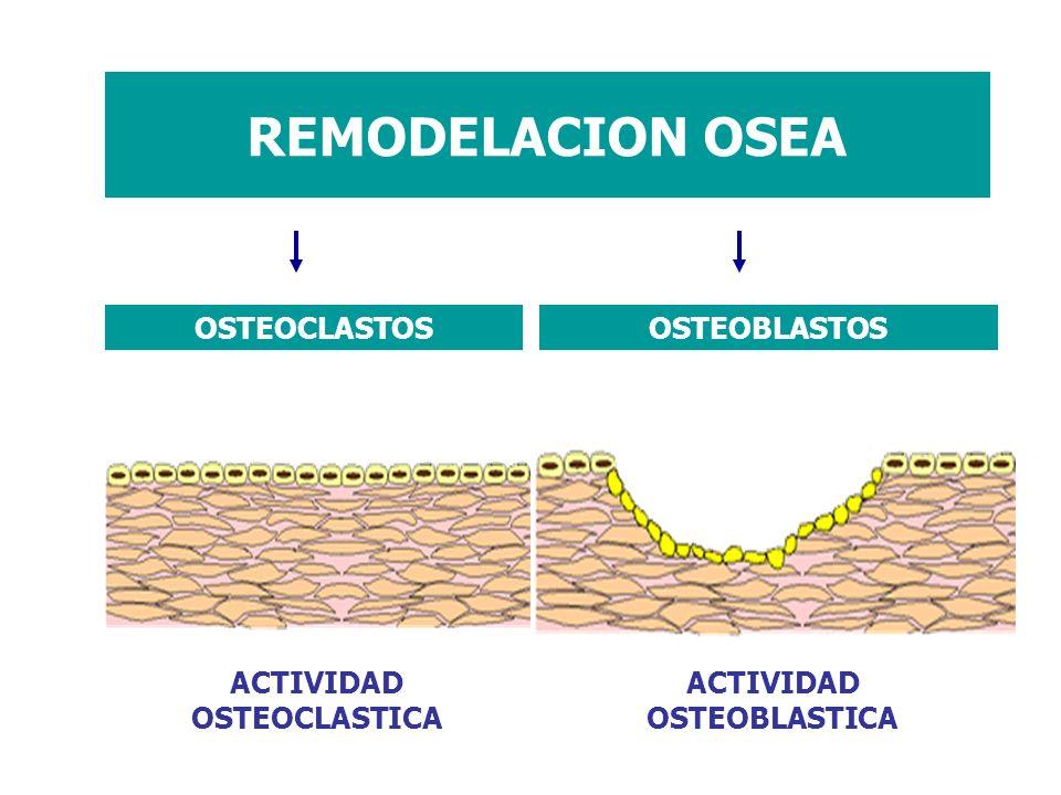 REMODELACION OSEA OSTEOCLASTOS OSTEOBLASTOS ACTIVIDAD OSTEOCLASTICA