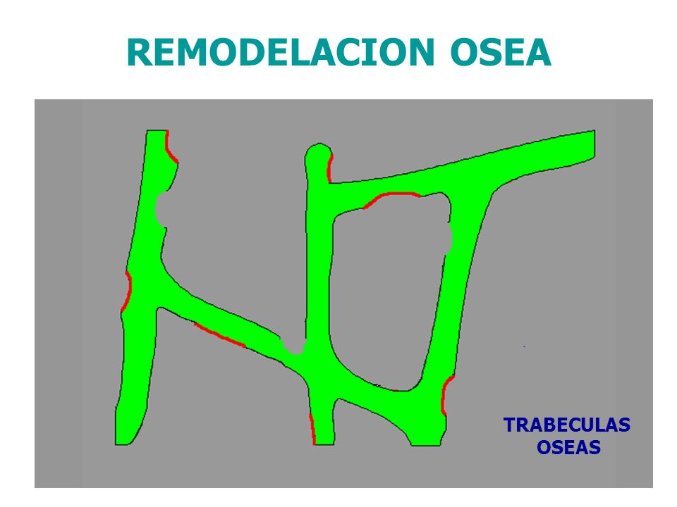 REMODELACION OSEA TRABECULAS OSEAS