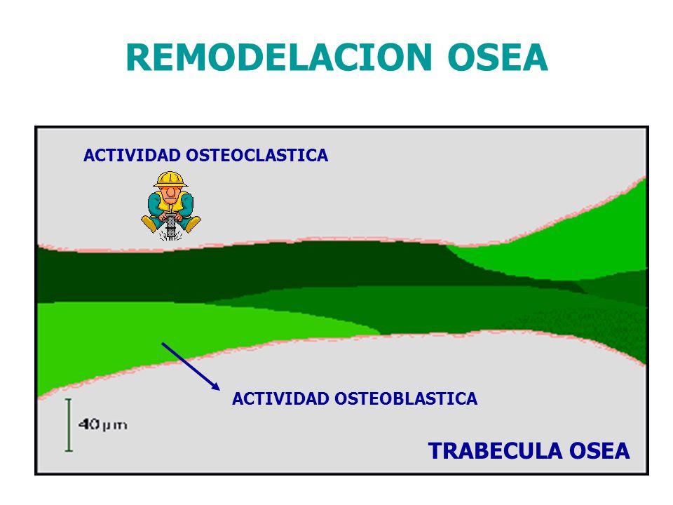ACTIVIDAD OSTEOCLASTICA ACTIVIDAD OSTEOBLASTICA
