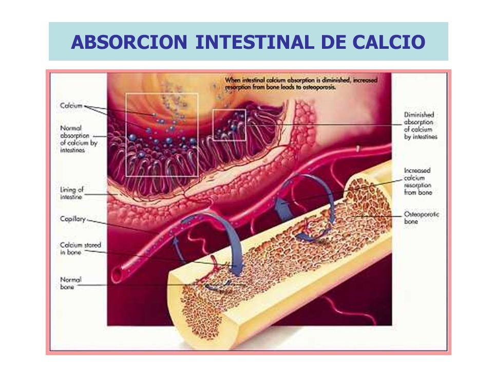 ABSORCION INTESTINAL DE CALCIO