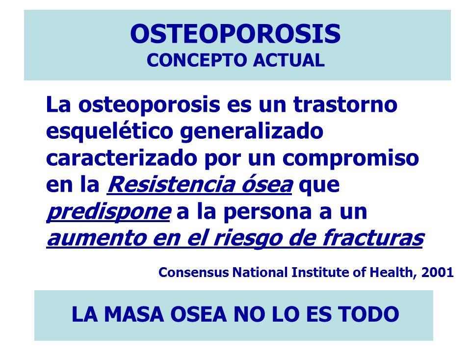 OSTEOPOROSIS CONCEPTO ACTUAL