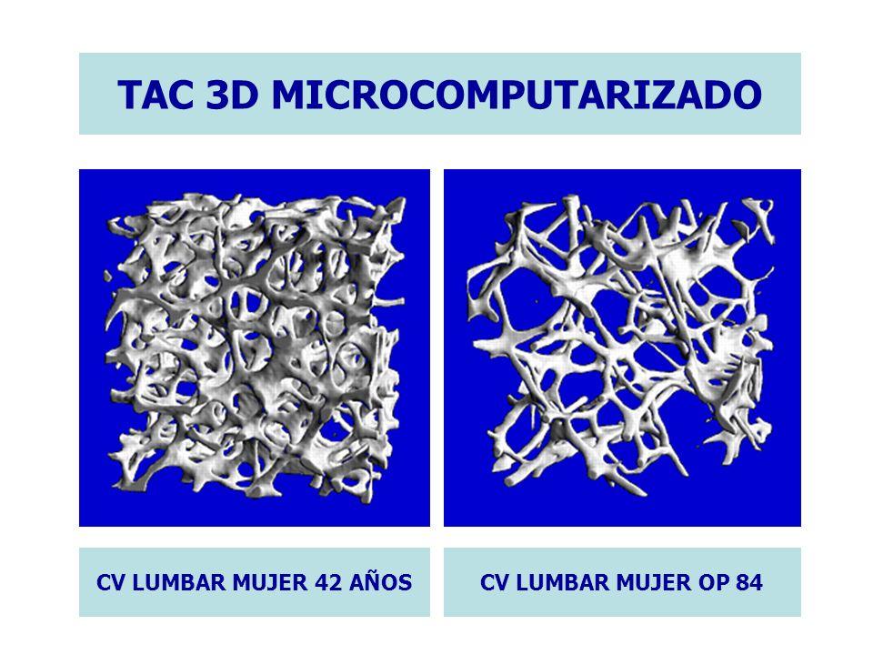 TAC 3D MICROCOMPUTARIZADO