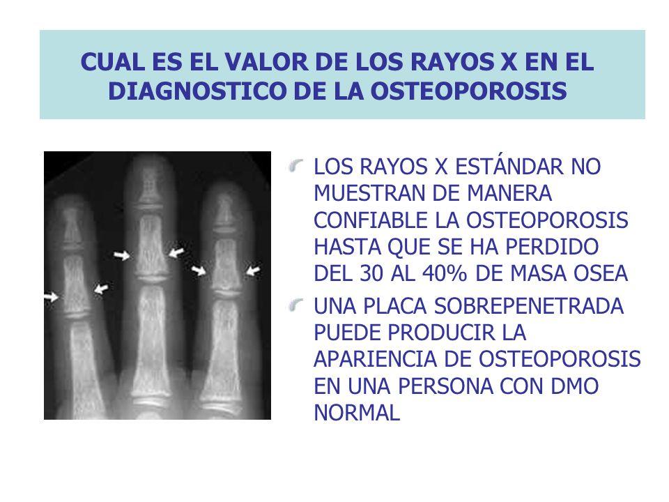 CUAL ES EL VALOR DE LOS RAYOS X EN EL DIAGNOSTICO DE LA OSTEOPOROSIS