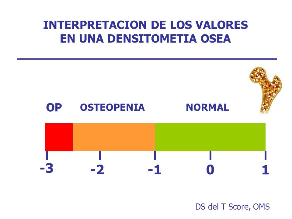 INTERPRETACION DE LOS VALORES EN UNA DENSITOMETIA OSEA