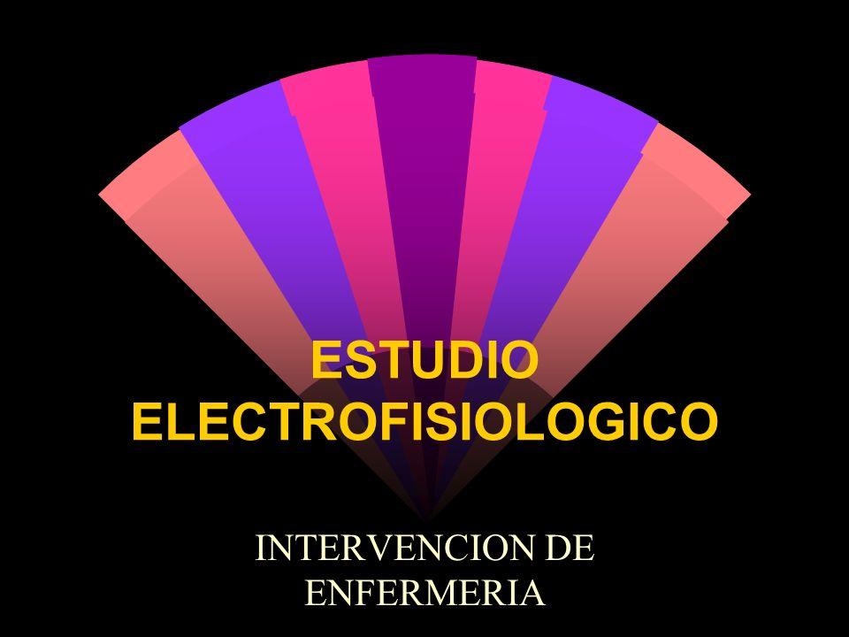 ESTUDIO ELECTROFISIOLOGICO