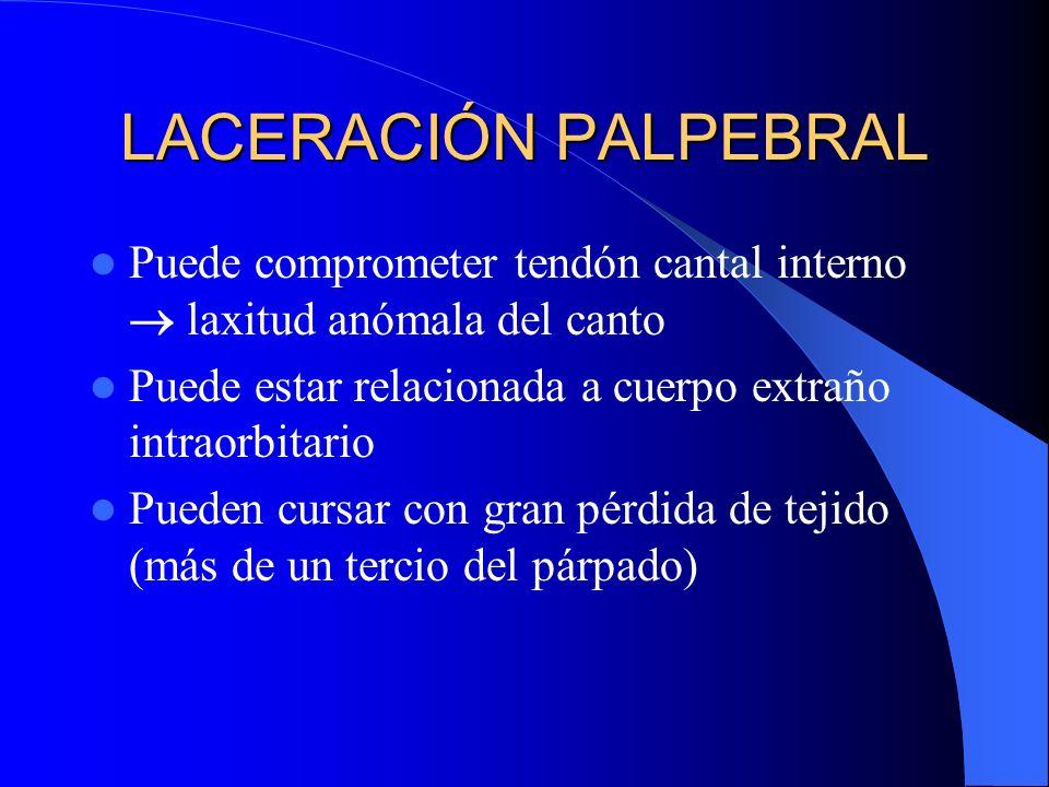 LACERACIÓN PALPEBRAL Puede comprometer tendón cantal interno  laxitud anómala del canto. Puede estar relacionada a cuerpo extraño intraorbitario.