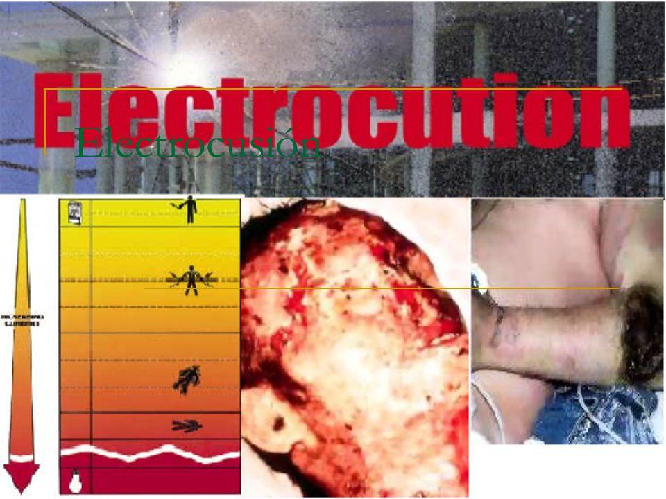 Electrocusión