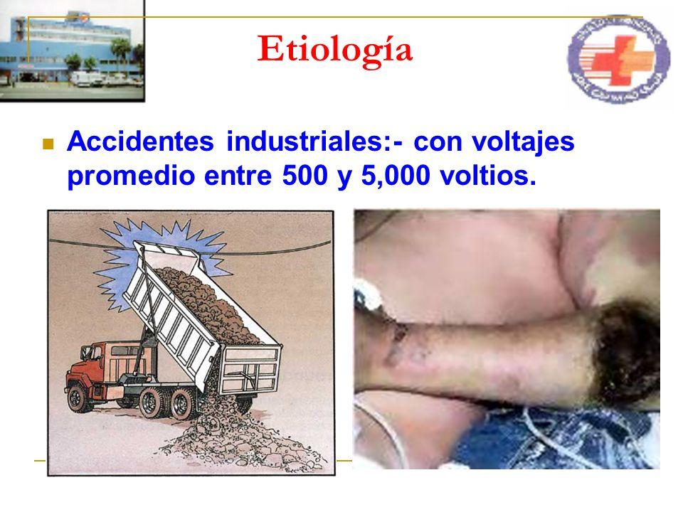 Etiología Accidentes industriales:- con voltajes promedio entre 500 y 5,000 voltios.