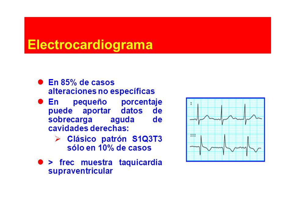 Electrocardiograma En 85% de casos alteraciones no específicas