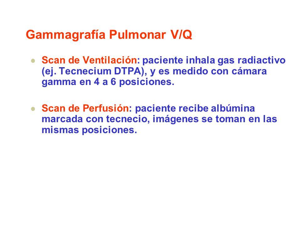 Gammagrafía Pulmonar V/Q