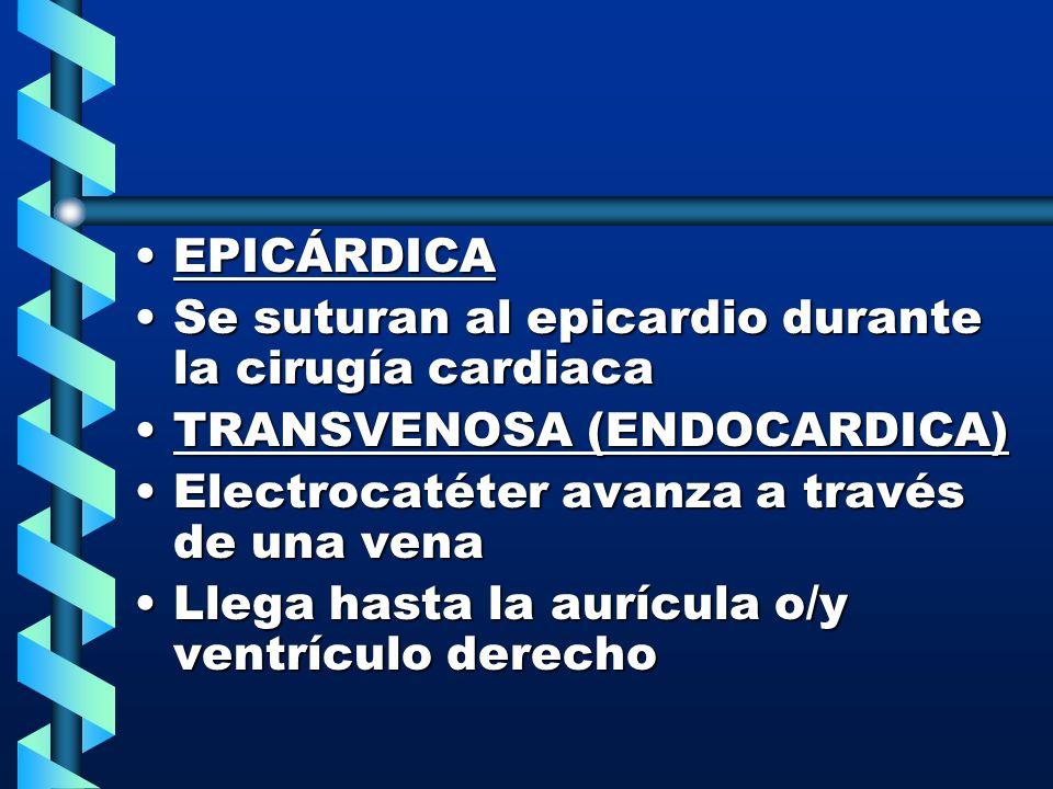 EPICÁRDICA Se suturan al epicardio durante la cirugía cardiaca. TRANSVENOSA (ENDOCARDICA) Electrocatéter avanza a través de una vena.