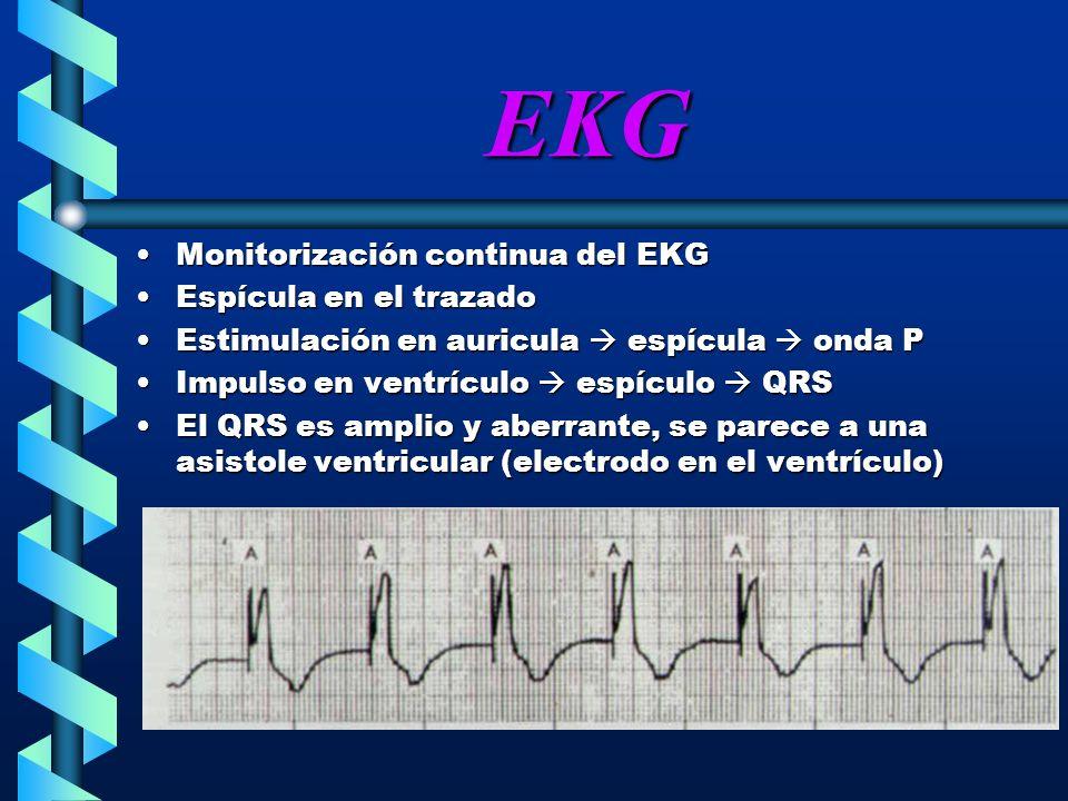 EKG Monitorización continua del EKG Espícula en el trazado