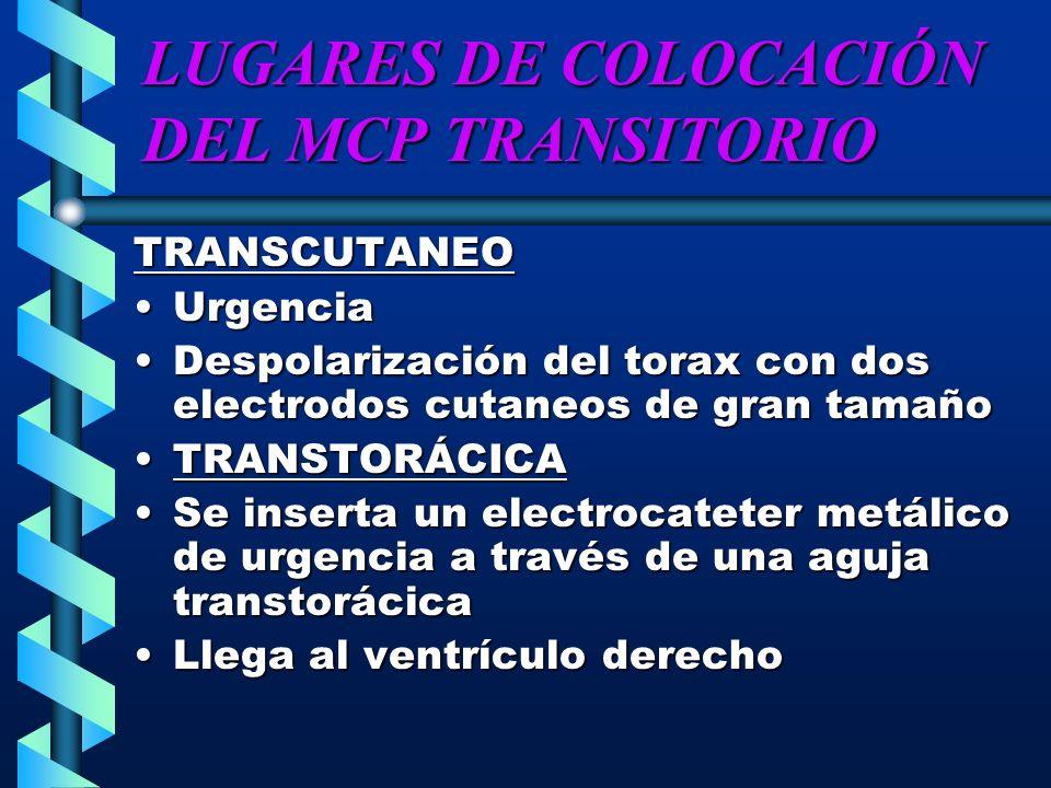 LUGARES DE COLOCACIÓN DEL MCP TRANSITORIO