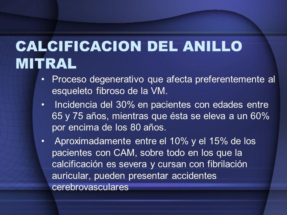 CALCIFICACION DEL ANILLO MITRAL