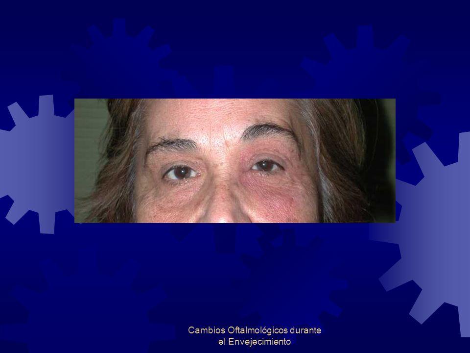 Cambios Oftalmológicos durante el Envejecimiento